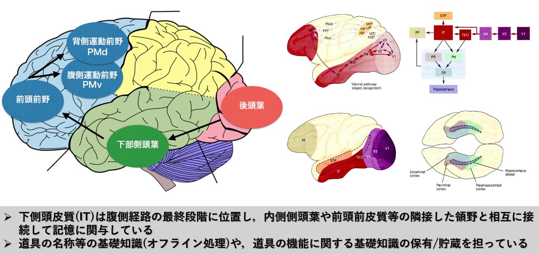 後頭葉 - 脳卒中(脳梗塞)・パー...
